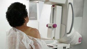 Mammograms-Milenio Stadium-Canada